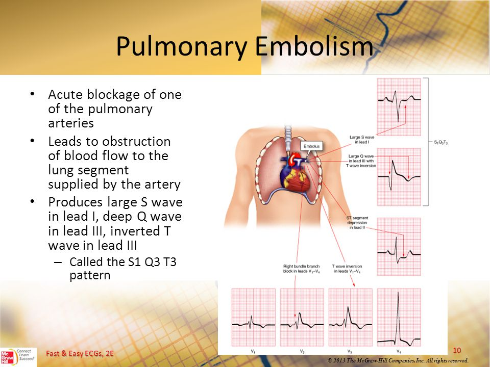 Pulmonary Embolism Acute blockage of one of the pulmonary arteries