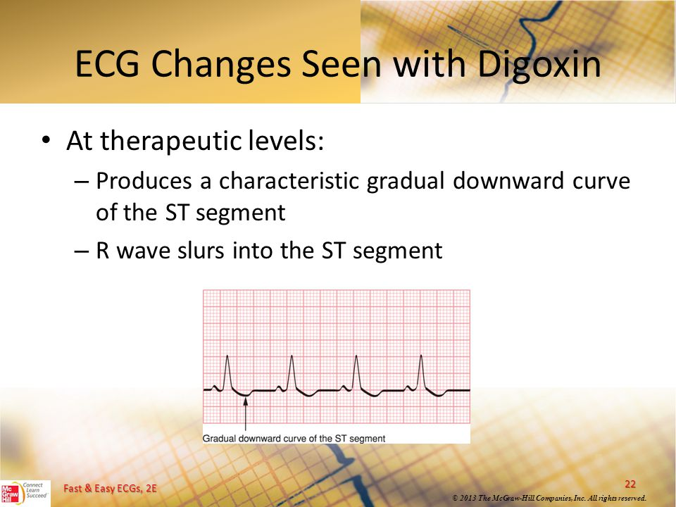 ECG Changes Seen with Digoxin
