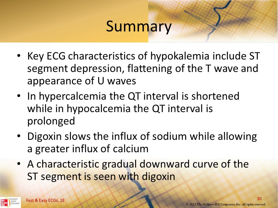 Summary Key ECG characteristics of hypokalemia include ST segment depression, flattening of the T wave and appearance of U waves.