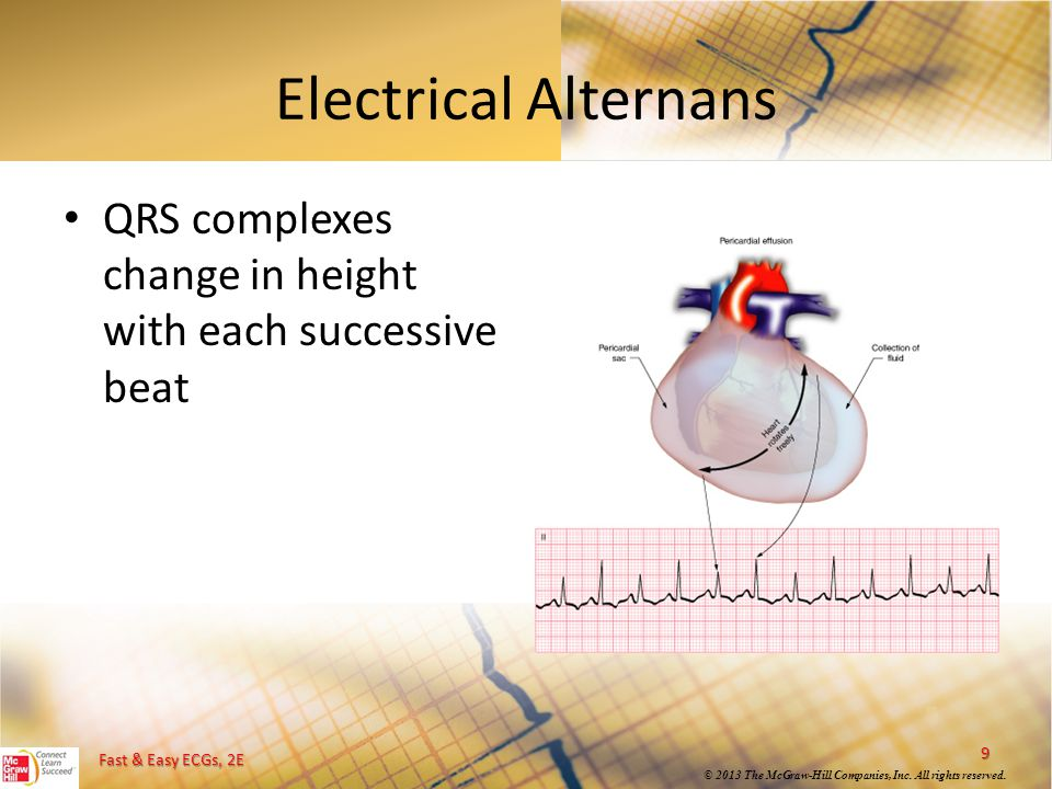 Electrical Alternans QRS complexes change in height with each successive beat