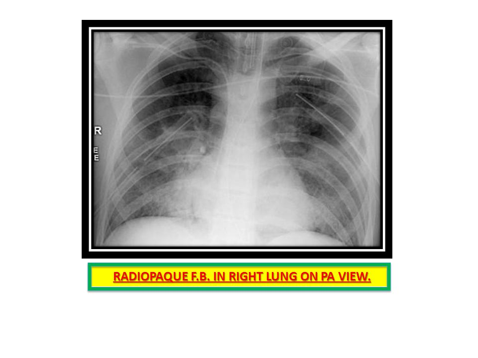 RADIOPAQUE F.B. IN RIGHT LUNG ON PA VIEW.