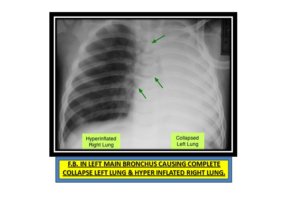 F.B. IN LEFT MAIN BRONCHUS CAUSING COMPLETE COLLAPSE LEFT LUNG & HYPER INFLATED RIGHT LUNG.