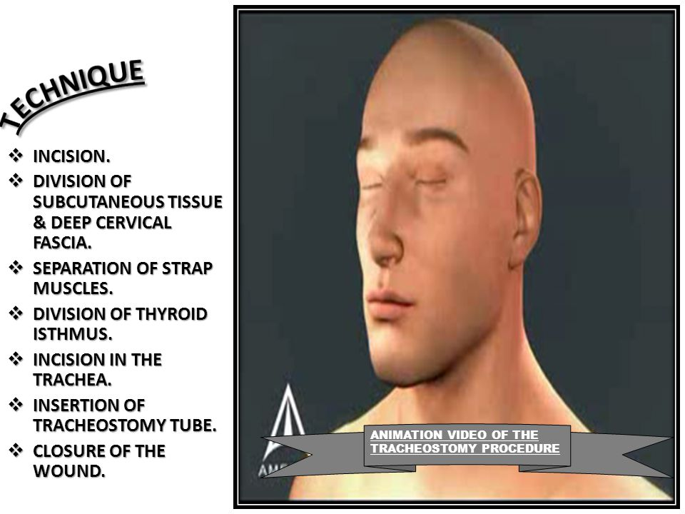 TECHNIQUE INCISION. DIVISION OF SUBCUTANEOUS TISSUE & DEEP CERVICAL FASCIA. SEPARATION OF STRAP MUSCLES.