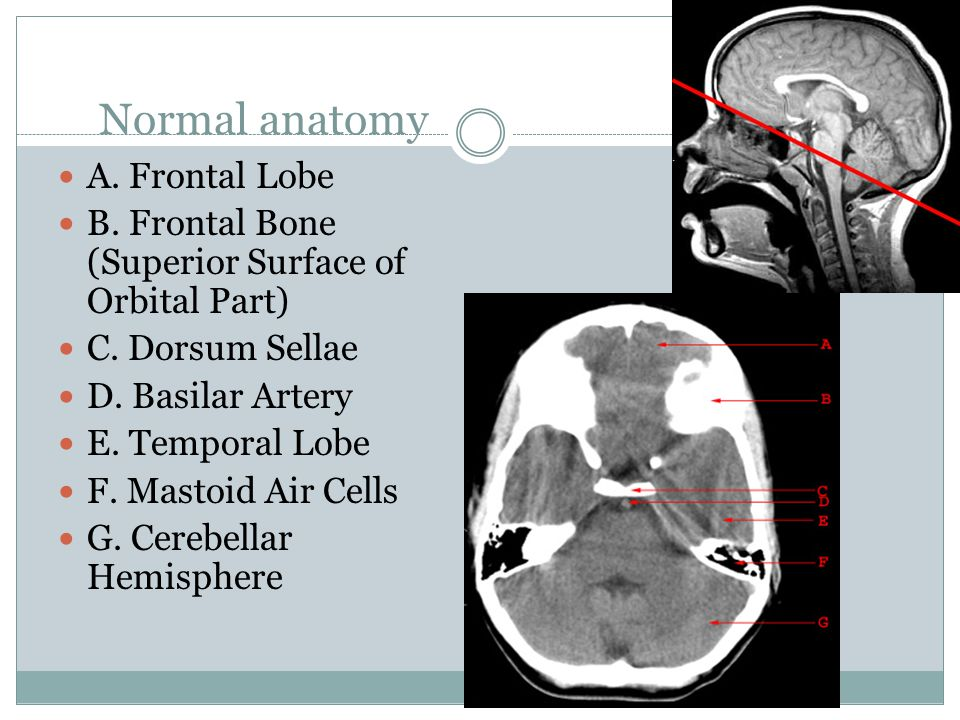 Interpretation of CT Brain- neuro surgical prospective - ppt video ...