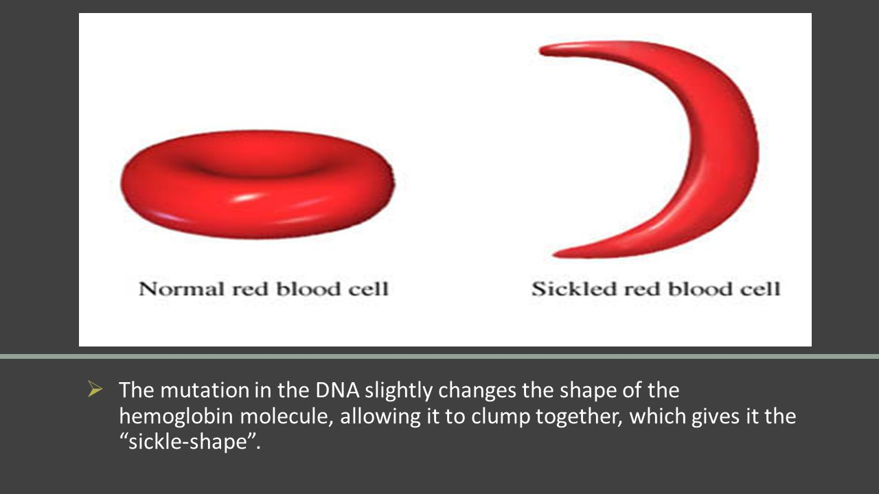 The mutation in the DNA slightly changes the shape of the hemoglobin molecule, allowing it to clump together, which gives it the sickle-shape .