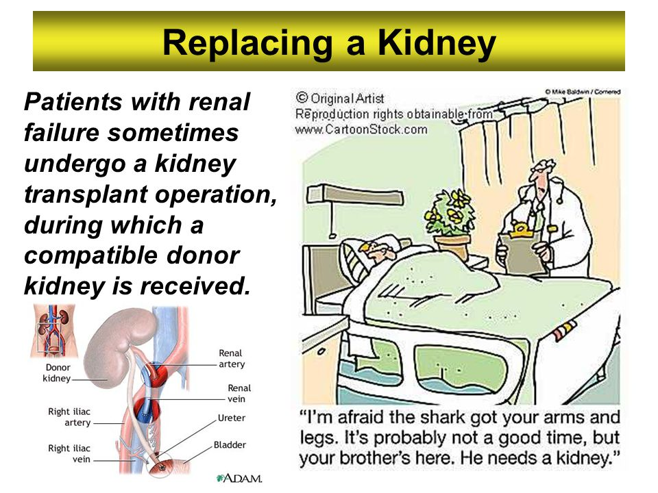 Replacing a Kidney Patients with renal failure sometimes undergo a kidney transplant operation, during which a compatible donor kidney is received.