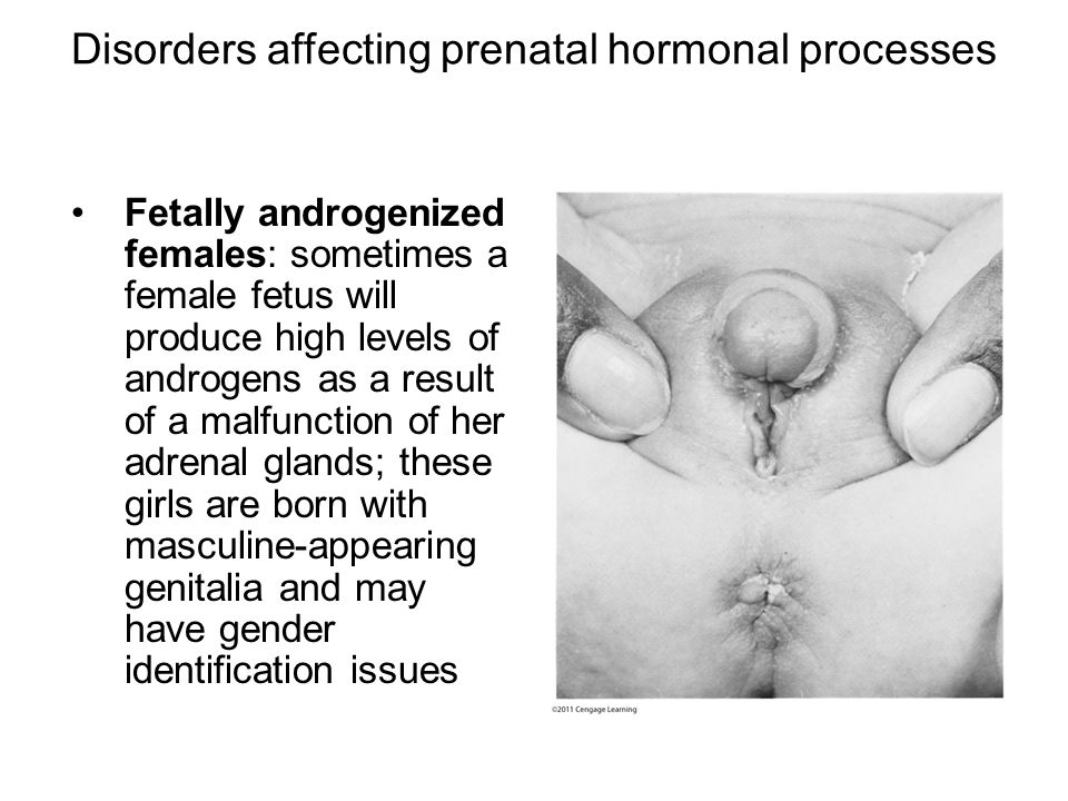 Disorders affecting prenatal hormonal processes