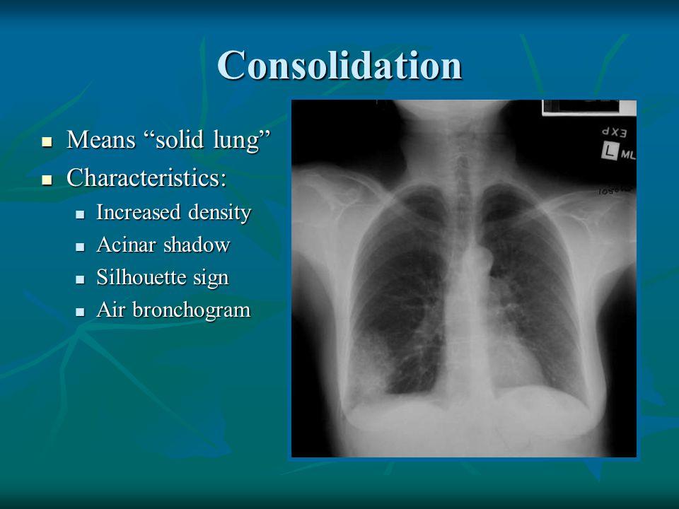 Normal Chest X Ray Vs Pneumonia Back to Basics Radiolo...
