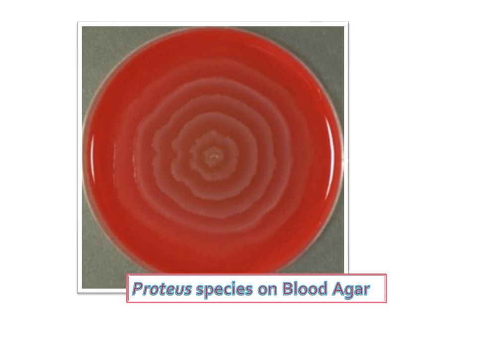 Proteus species on Blood Agar