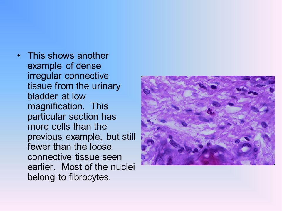Connective Tissue Connective Tissue Is Composed Of Cells Surrounded