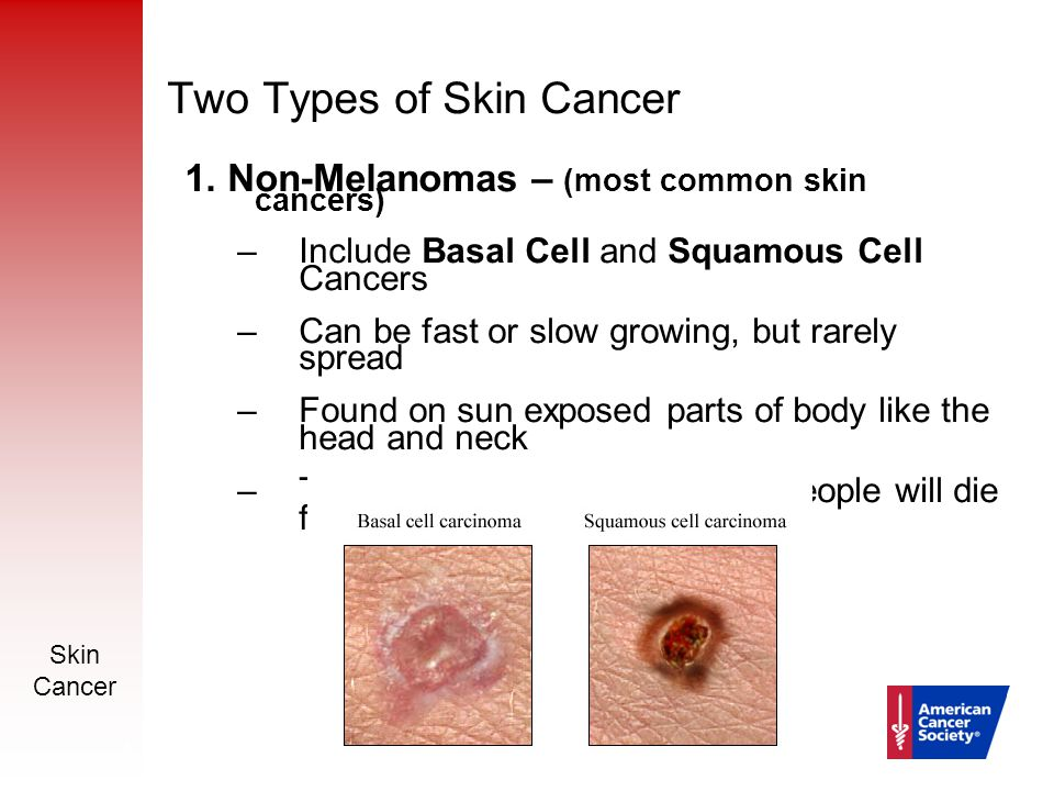 Skin Cancer Prevention And Early Detection Ppt Download