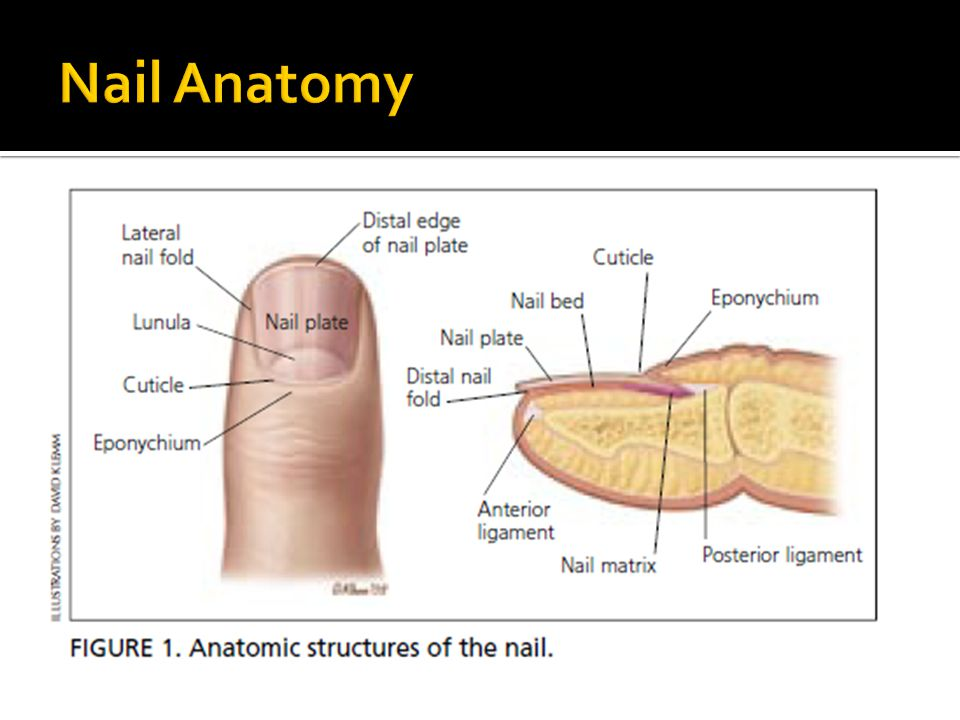Nail Disorders Clues To Systemic Disease Ppt Video Online Download
