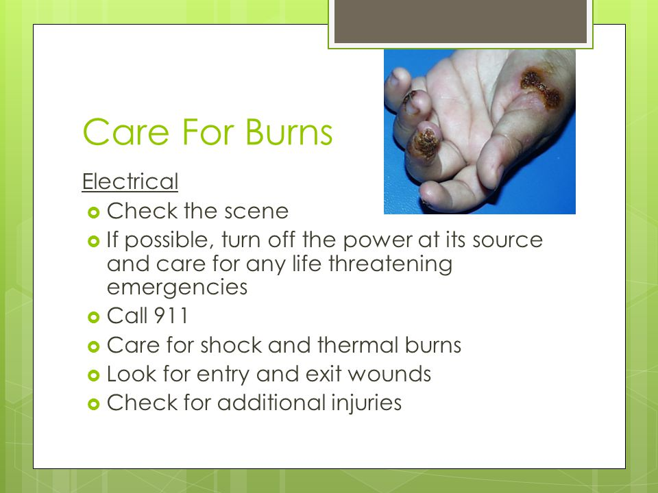 Care For Burns Electrical Check the scene