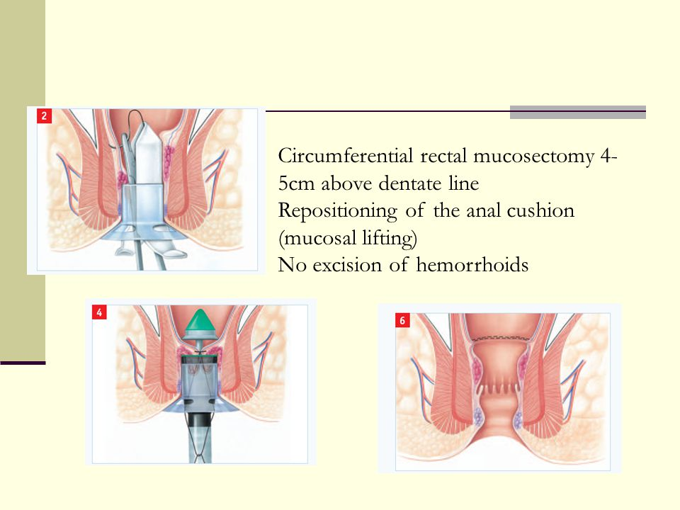 Circumferential rectal mucosectomy 4-5cm above dentate line