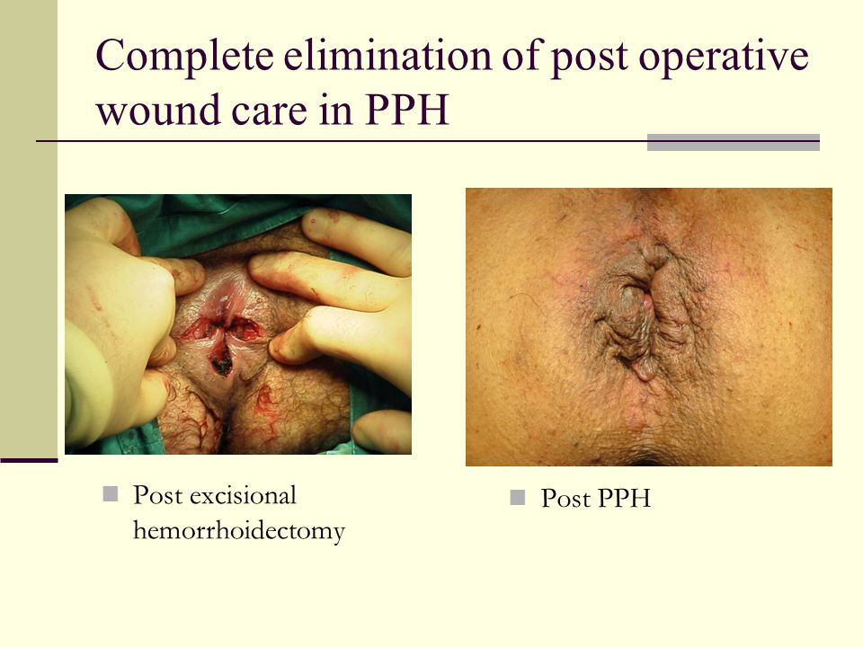 Complete elimination of post operative wound care in PPH