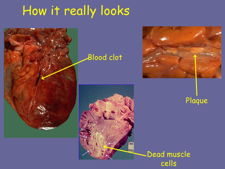 How it really looks Blood clot Plaque Dead muscle cells