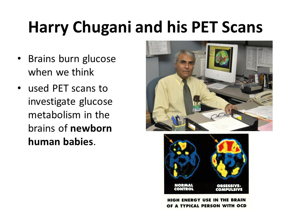 Harry Chugani and his PET Scans
