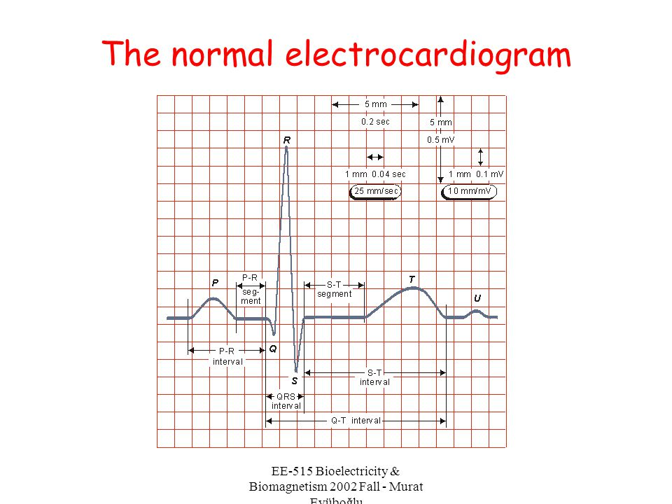 The normal electrocardiogram