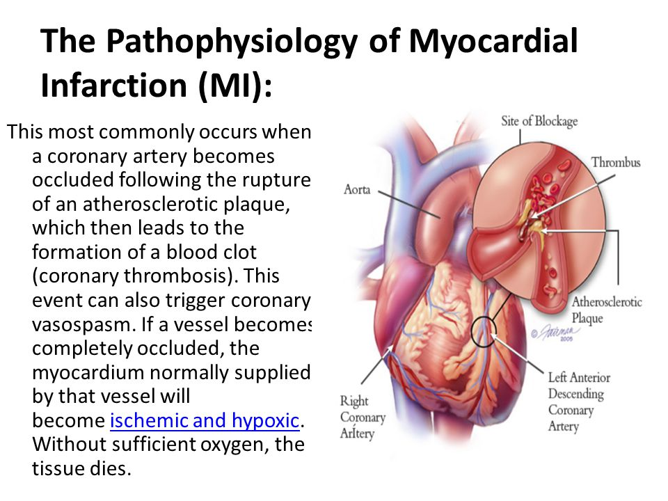 Cardiac Pathophysiology - ppt video online download