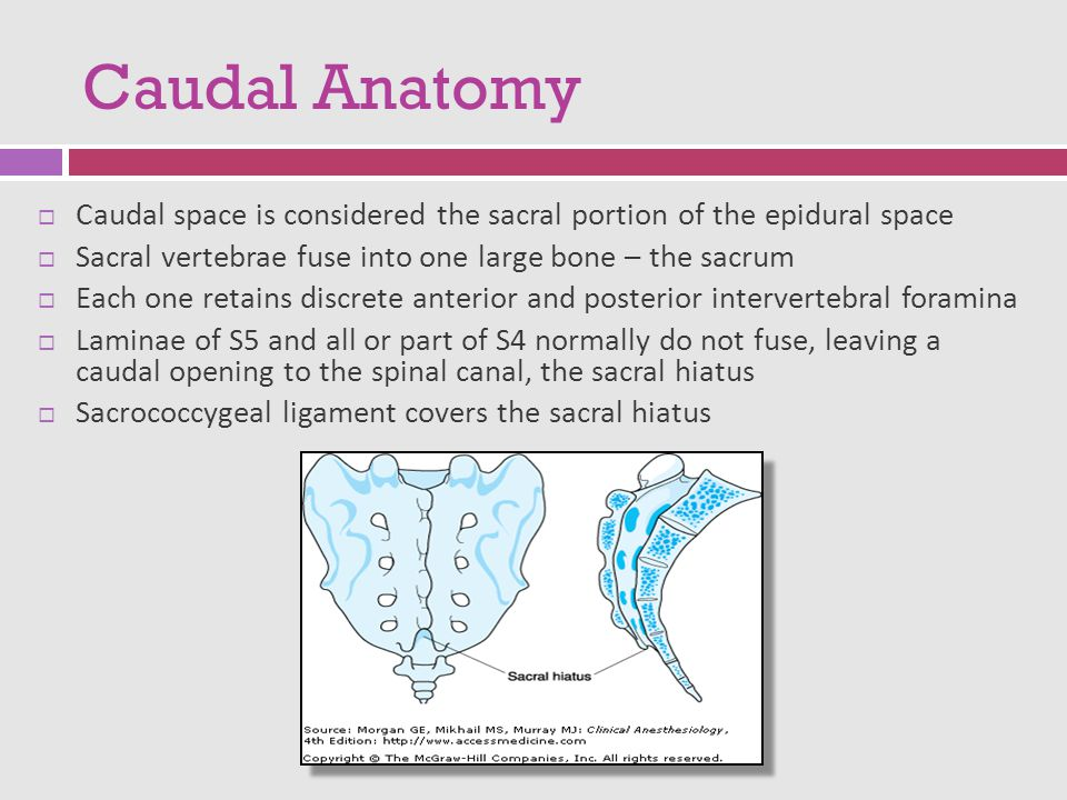 Neuraxial Anesthesia: Spinal epidural Caudal - ppt download