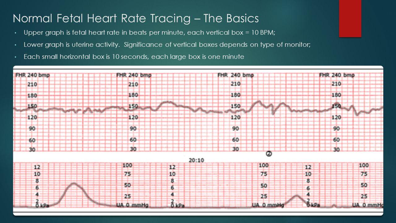 Fetal heart rate and fetal sex