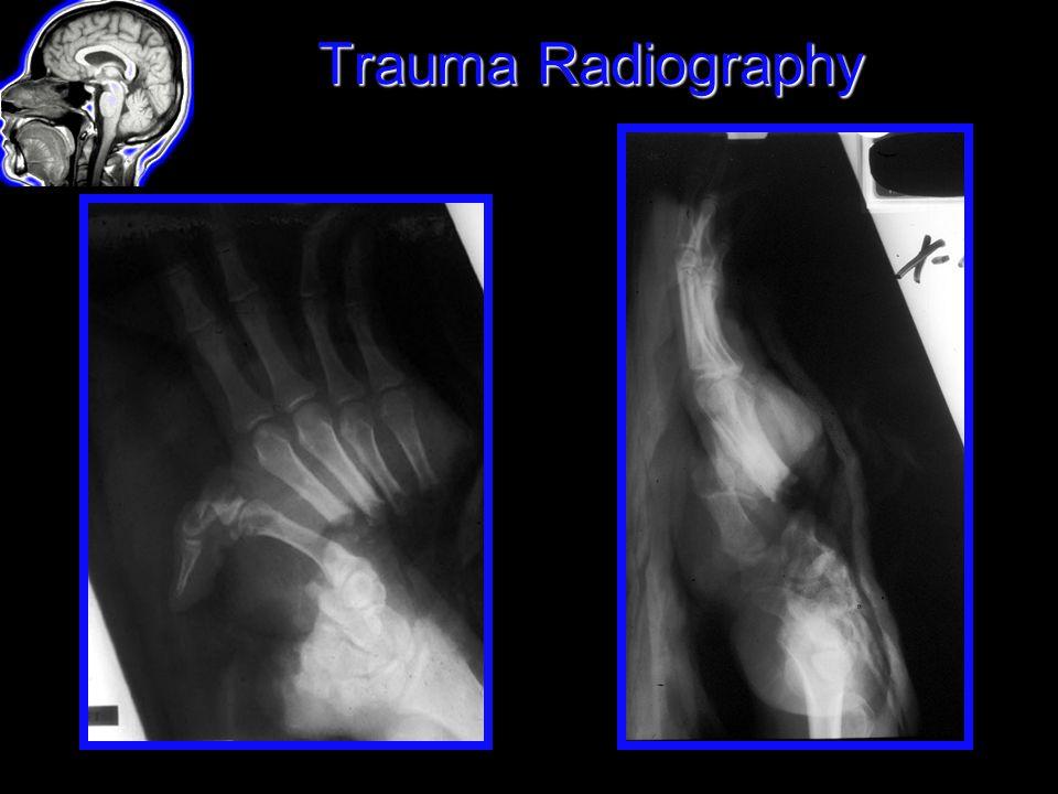 trauma radiography