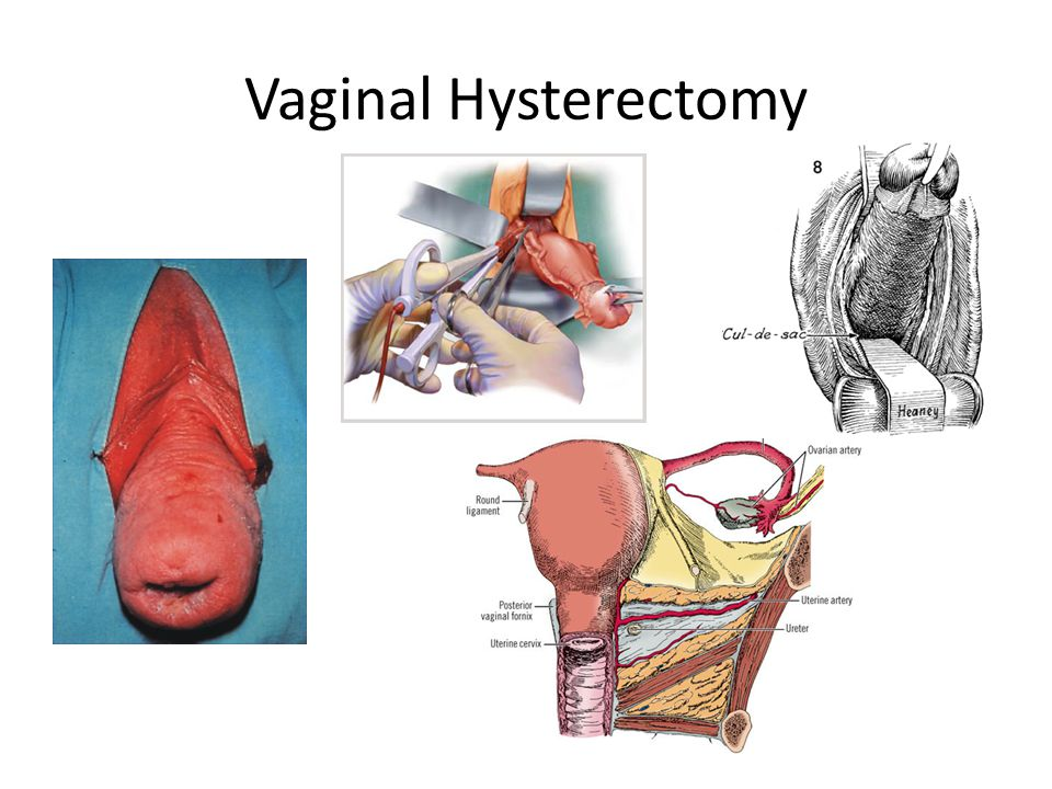 Pelvic Surgical Anatomy - ppt video online download