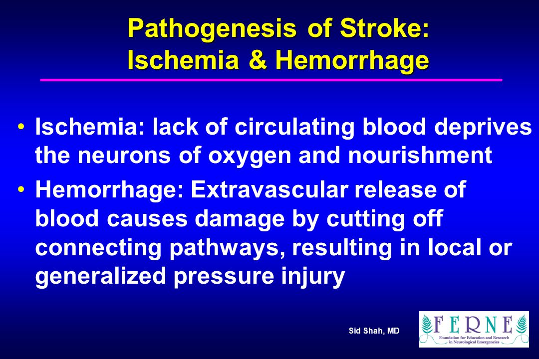 Pathophysiology of Stroke Sid M - ppt video online download
