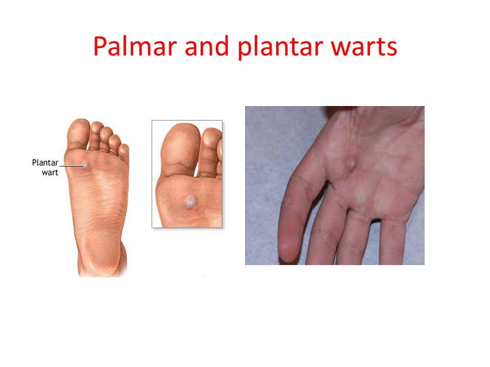 Scoaterea unui negilor pe deget: la domiciliu și profesional Hpv palmer wart