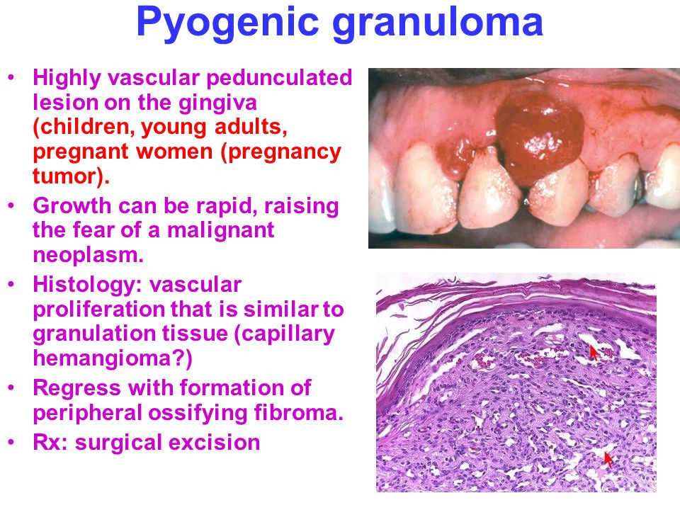 Internal hemangiomas Types diagnosis and treatment