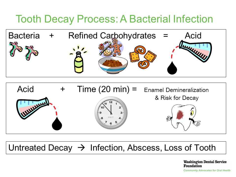 Tooth Decay Process: A Bacterial Infection