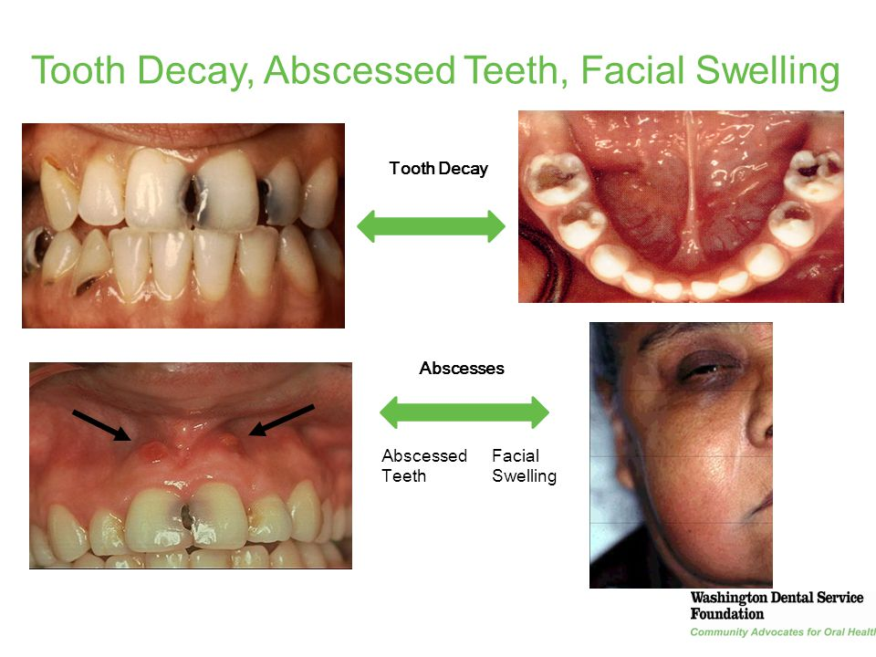 Tooth Decay, Abscessed Teeth, Facial Swelling