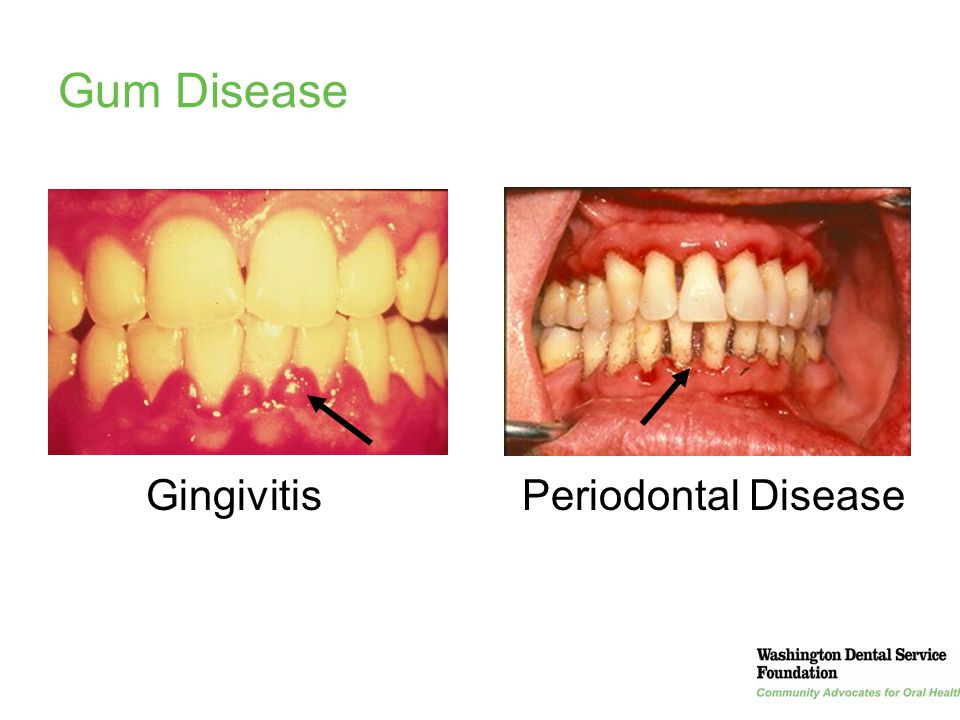 Gum Disease Gingivitis Periodontal Disease