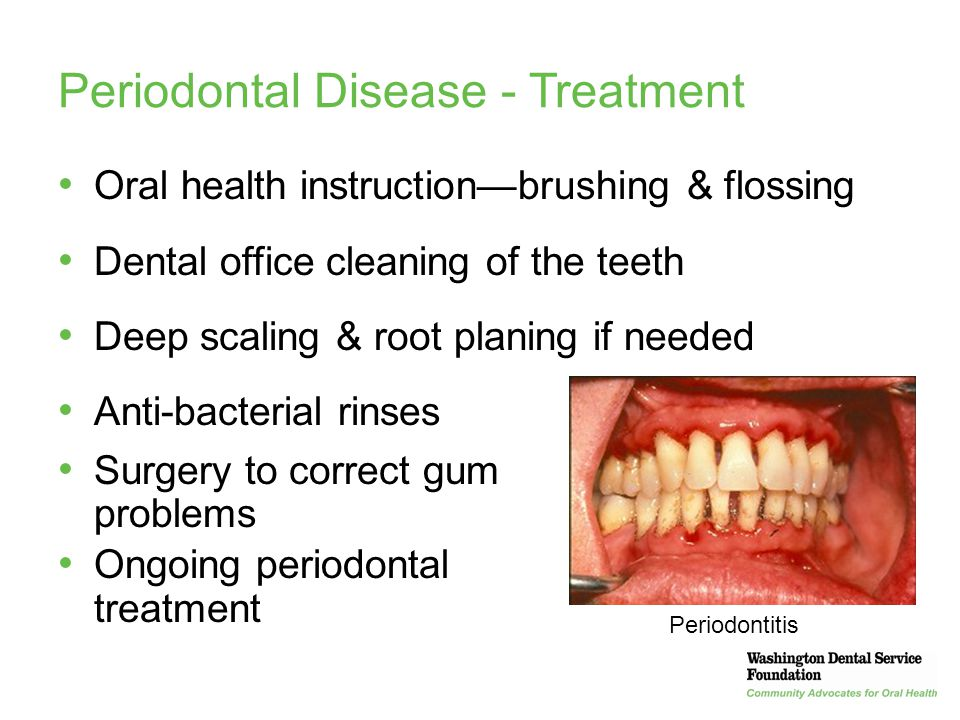 Periodontal Disease - Treatment