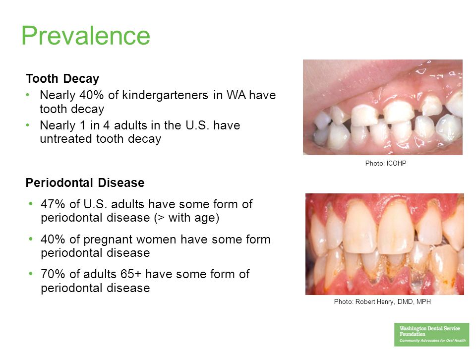 Prevalence Tooth Decay