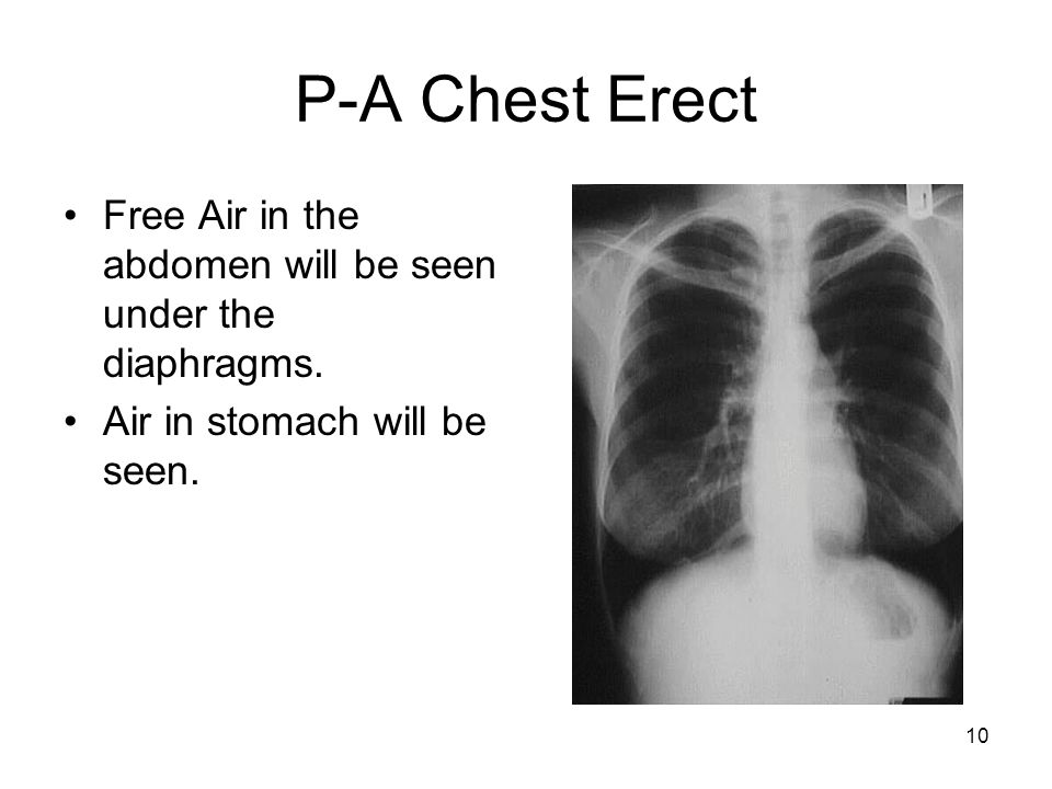 P-A Chest Erect Free Air in the abdomen will be seen under the diaphragms.