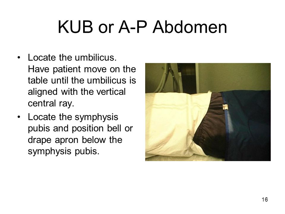 KUB or A-P Abdomen Locate the umbilicus. Have patient move on the table until the umbilicus is aligned with the vertical central ray.