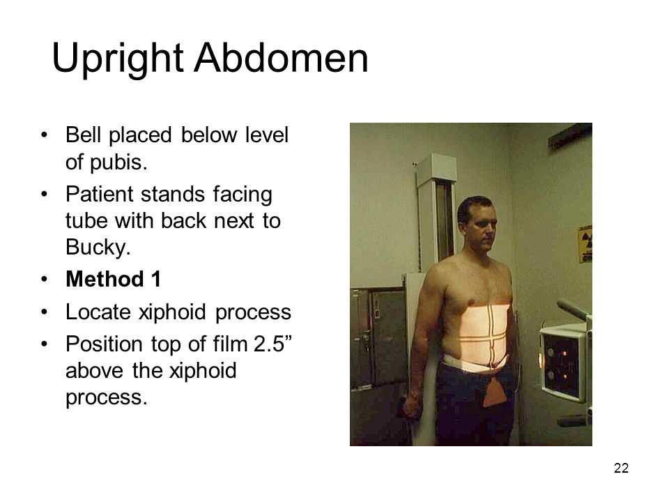 Upright Abdomen Bell placed below level of pubis.