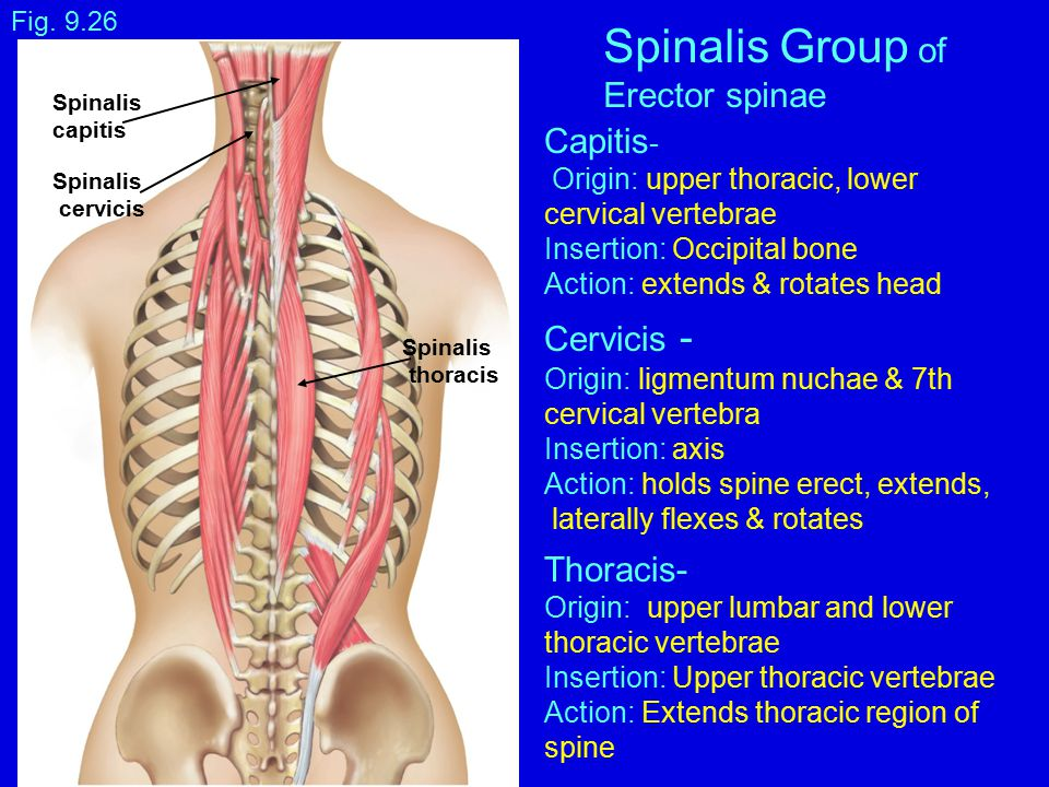 Spinalis Group of Erector spinae Capitis- Cervicis - Thoracis-
