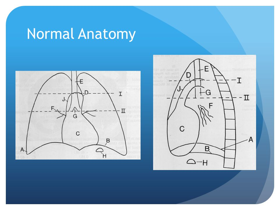 Normal Anatomy A costophrenic angle B left diaphragm C heart D aortic knob E trachea F hilum G carina H stomach bubble J ascending aorta.