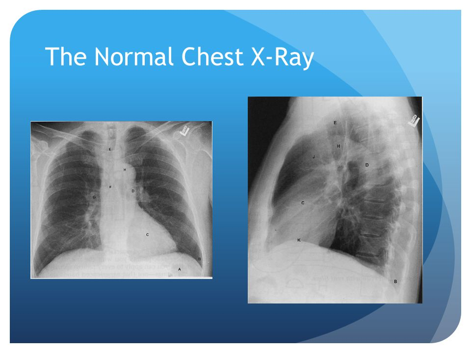 The Normal Chest X-Ray