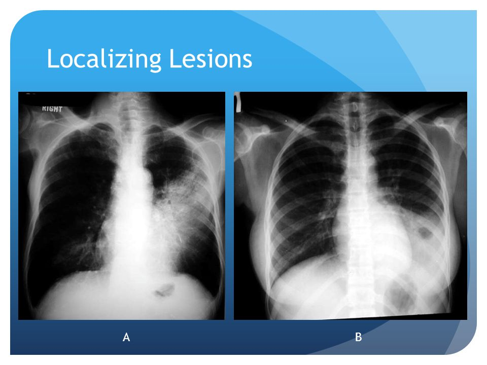 Localizing Lesions A Left lingular infiltrate B left lower lobe infiltrate A B