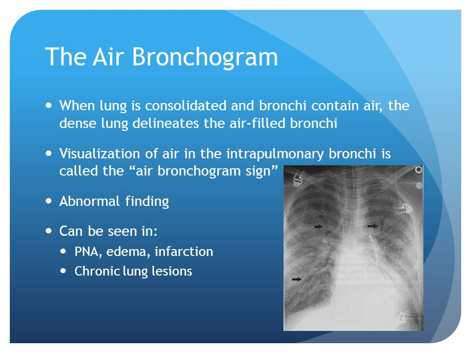 The Air Bronchogram When lung is consolidated and bronchi contain air, the dense lung delineates the air-filled bronchi.