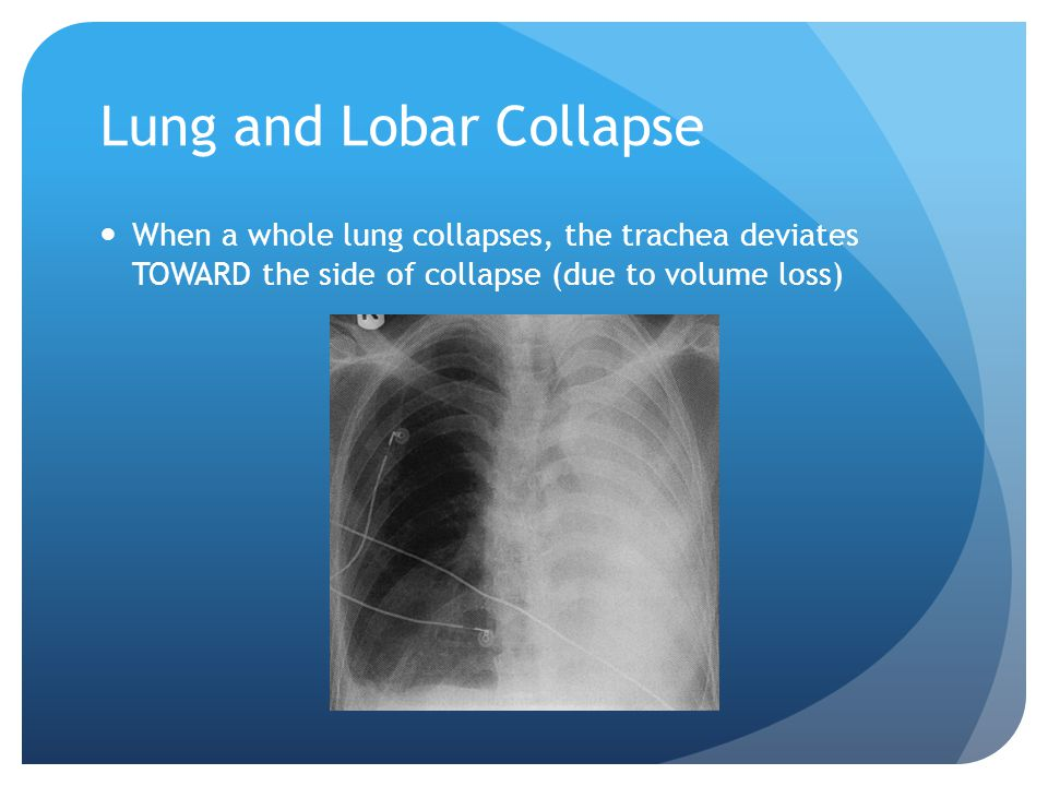 Lung and Lobar Collapse