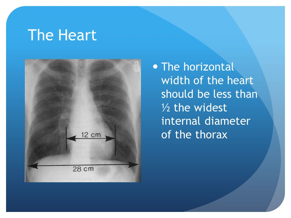 The Heart The horizontal width of the heart should be less than ½ the widest internal diameter of the thorax.