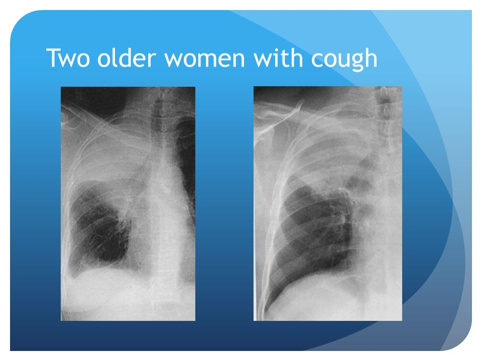 Two older women with cough