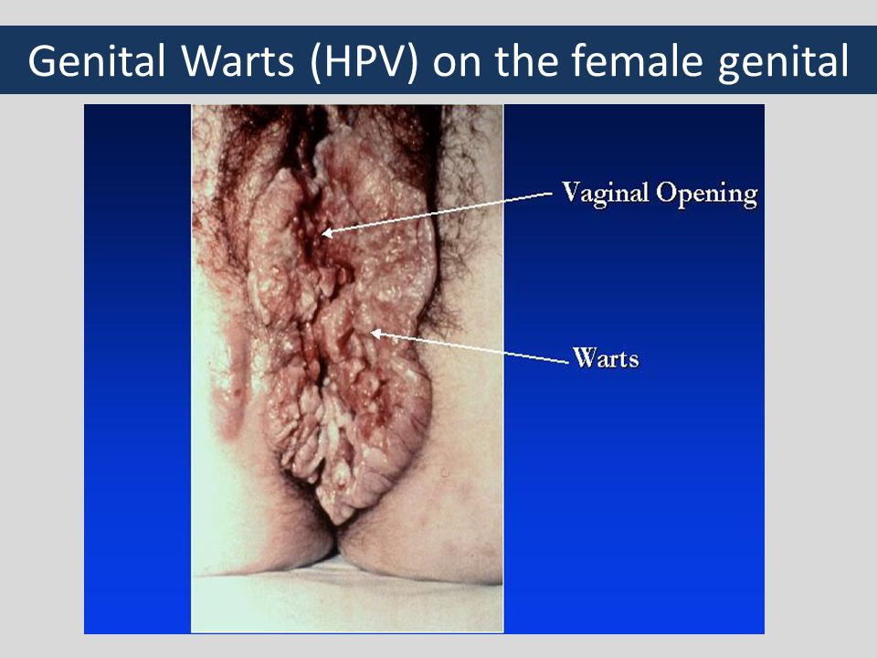 What is hpv genital warts
