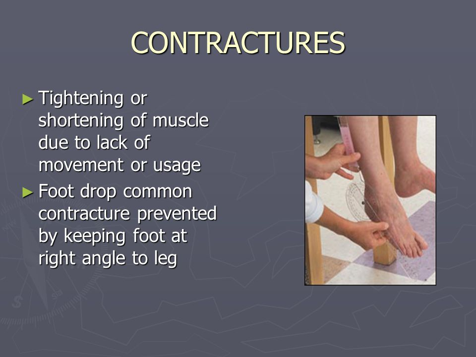 CONTRACTURES Tightening or shortening of muscle due to lack of movement or usage.
