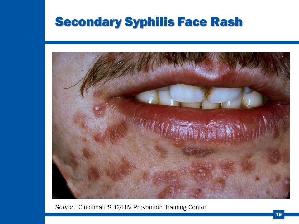 Sexually transmitted disease rash on face