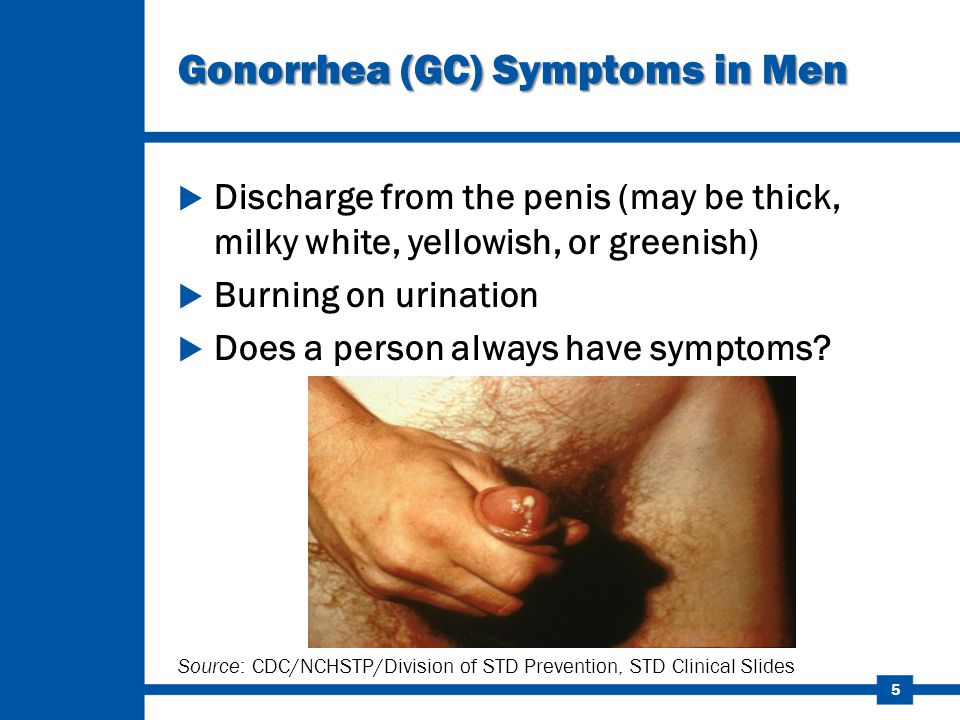 Symptoms and signs of penis infection caused by an sti